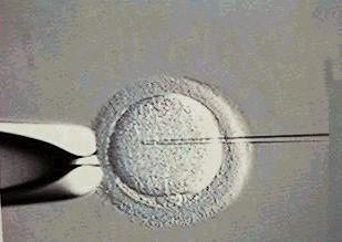 精子の注入